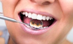 Ультразвуковая чистка зубов – кому рекомендована