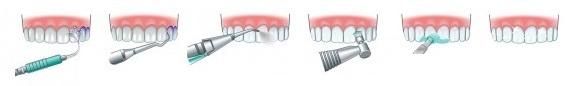 ультразвуковая чистка зубов и очищение рядов пескоструйным аппаратом Air Flow