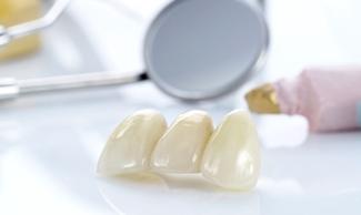 технологии протезирования зубов