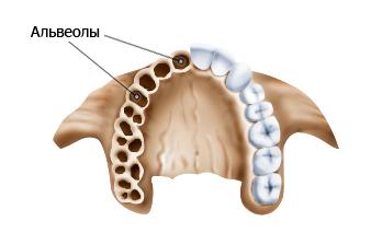 Удаление зуба повлекло альвеолит