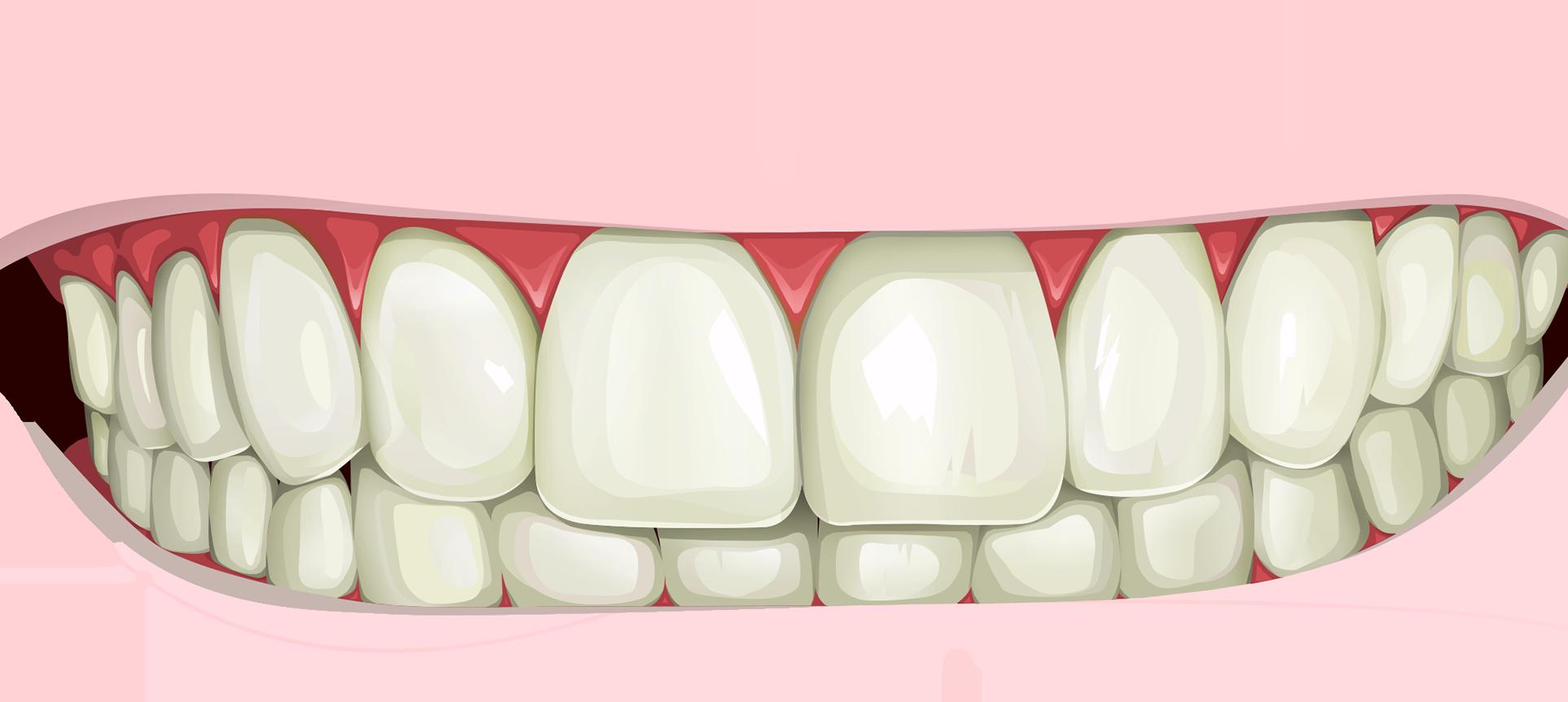 Цены на отбеливание зубов в брянске