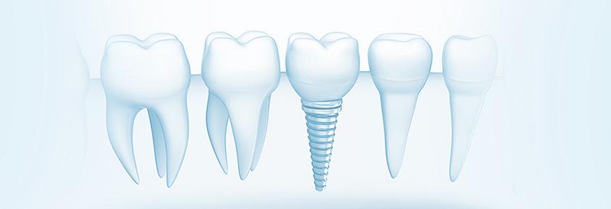 Зубные импланты под ключ – что это?
