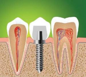 Импланты зубов – как узнать точную цену?