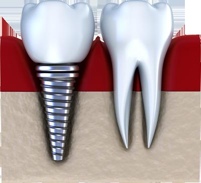 Имплантация зубов – терапия после операции