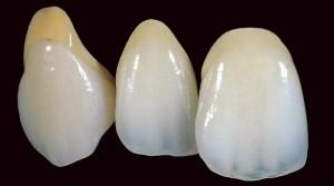 Зубные коронки – рекомендации специалистов