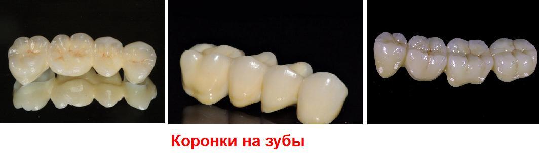 Коронка на зуб – что это?