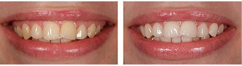лучшее отбеливание зубов