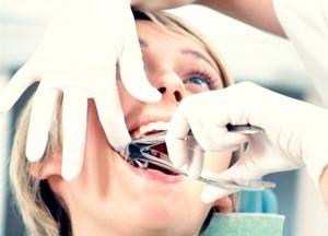 Удалить зуб – этапы процедуры