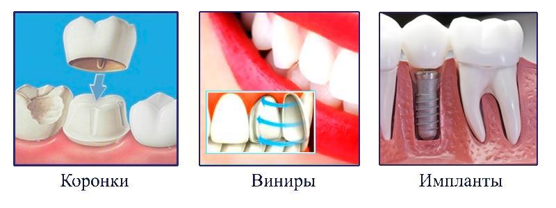 Сколько служит коронка на зуб