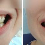 Пациентка Екатерина, 32г, реставрация зуба 11