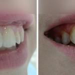 Пациентка Дарья, реставрация зубов 12, 11 с использованием композитных красок